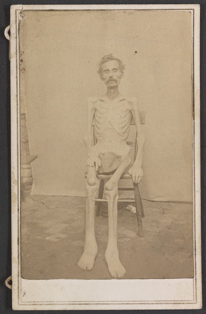 Prisoner of war. 1865.